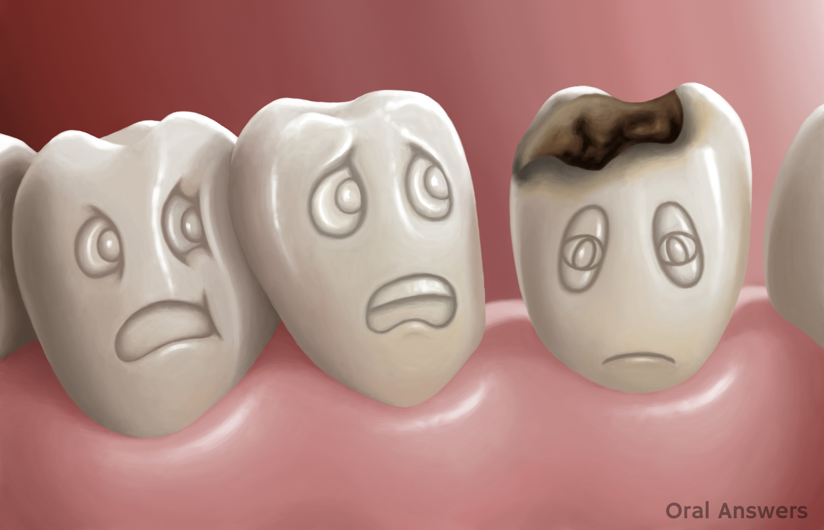tooth decay Don't wait to call your dentist about tooth decay pain until your appointment, here are some tips for easing the pain when you have a cavity.